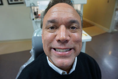 Smile transformation at Beavercreek Dental