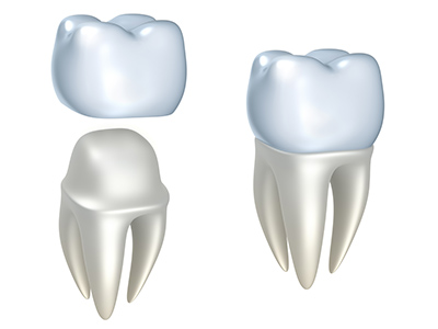 Dental Crowns by dentist in Oregon City, OR.