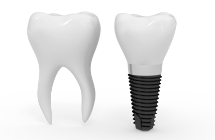 Single tooth Implant at Oregon City, OR.