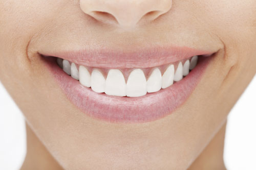 Veneers at Beavercreek Dental