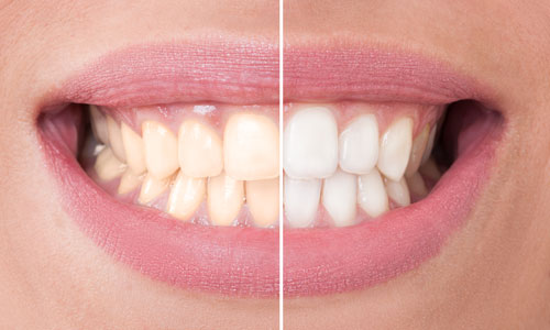 Teeth Whitening from Beavercreek Dental in Oregon City